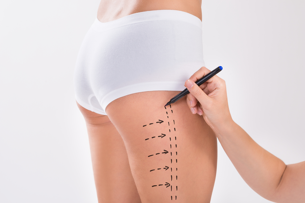 脂肪吸引・痩身の整形の失敗・修正・再手術