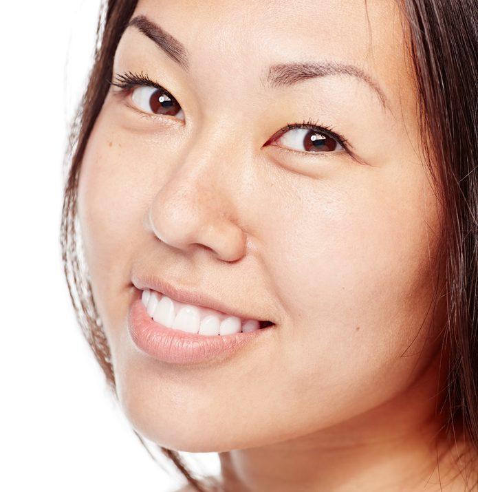 出っ歯(上顎分節骨切り)の失敗・修正・再手術