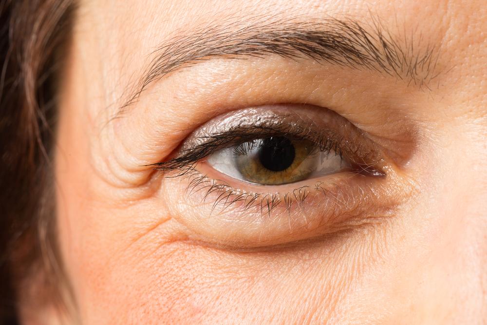 下眼瞼脱脂法(クマ取り整形)の失敗・修正・再手術