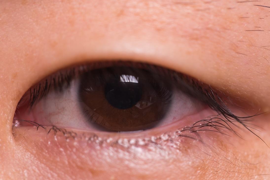 下眼瞼切開法(下まぶたのたるみ)の失敗・修正・再手術