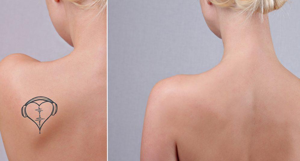 タトゥー・刺青除去の失敗・修正・再手術