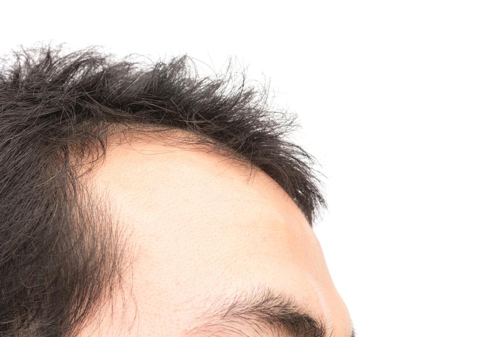 自毛植毛の失敗・修正・再手術