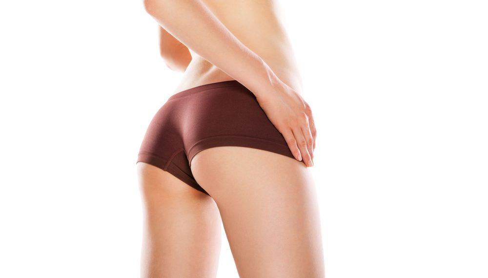 お尻・臀部の脂肪吸引の失敗・修正・再手術