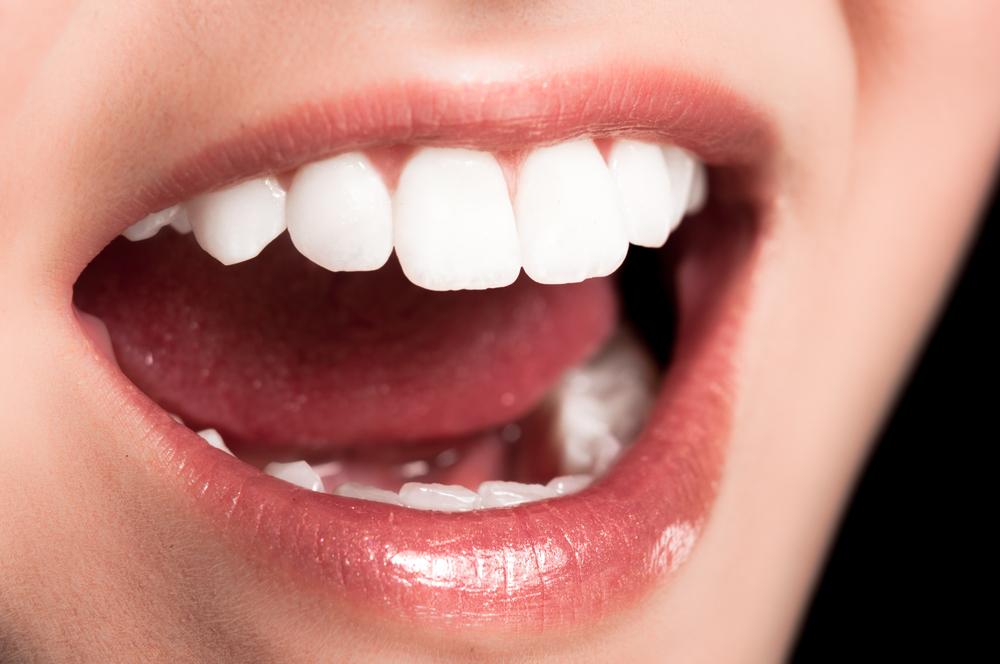 オゾレーザー(口臭レーザー)の失敗・修正・再手術