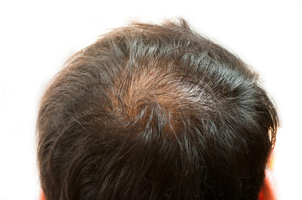 頭頂部ハゲ(AGA)の失敗・修正・再手術