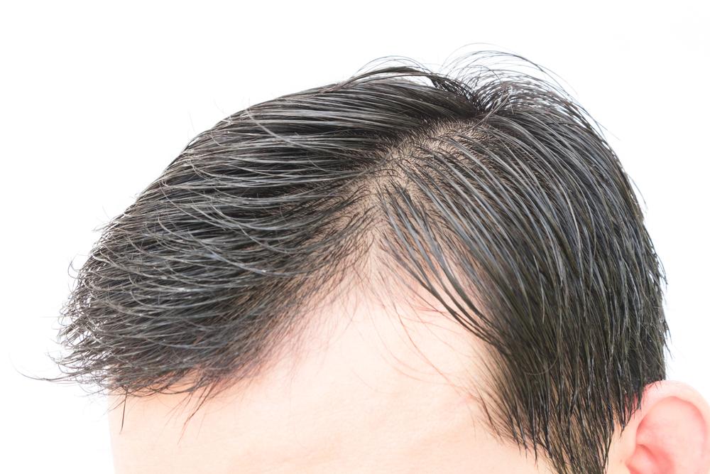 頭髪育毛の失敗・修正・再手術
