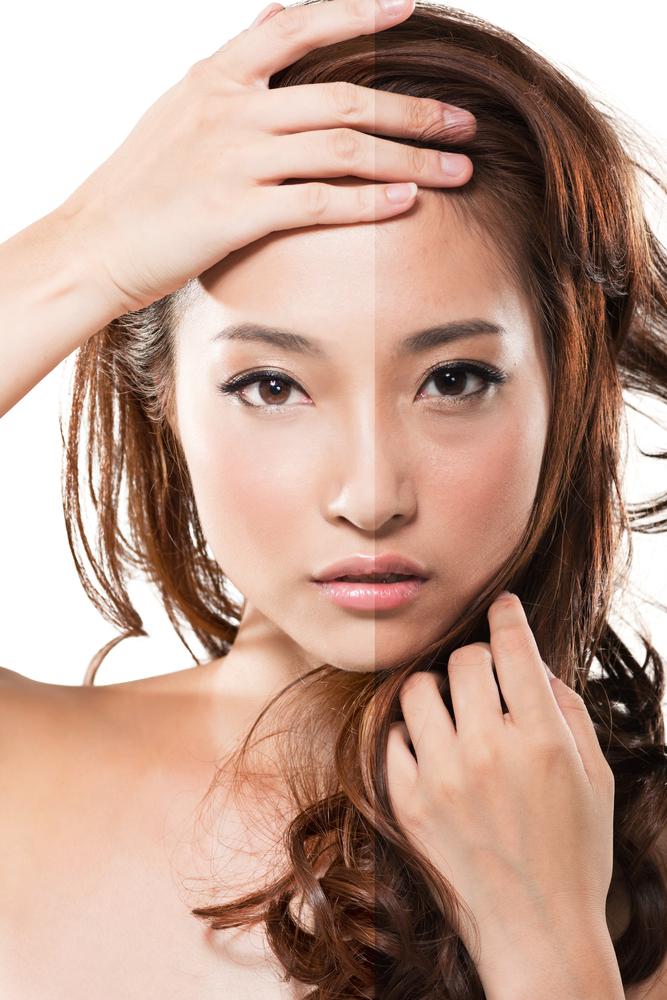 額のたるみの美容整形のリアルな効果と失敗・修正