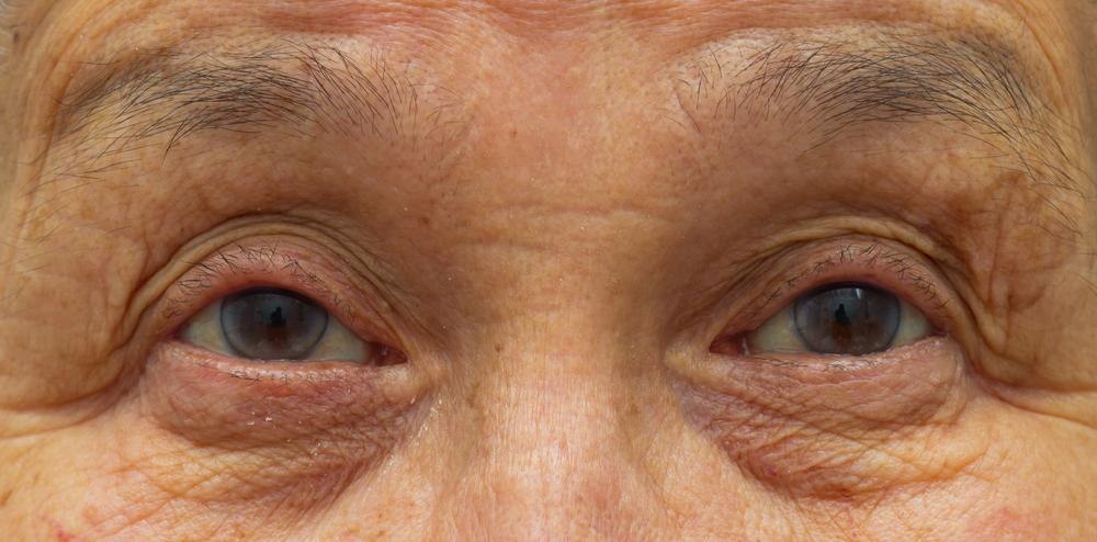 目の下のしわの美容整形のリアルな効果と失敗・修正